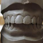 Casting the Teeth